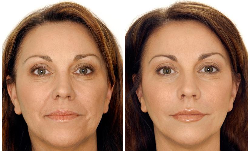 биоревитализация фото до и после