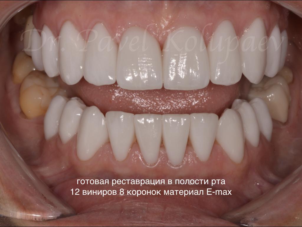 Улыбнитесь коронавирусу красиво!